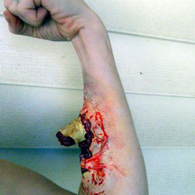 Prosthetic latex wound