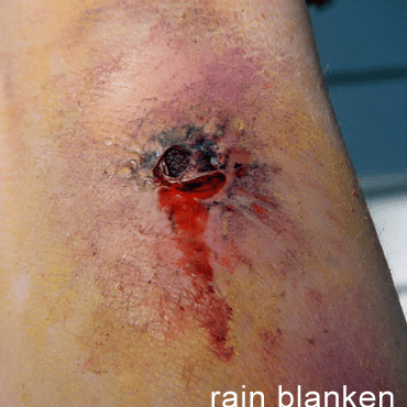 Realistic Zombie Wounds